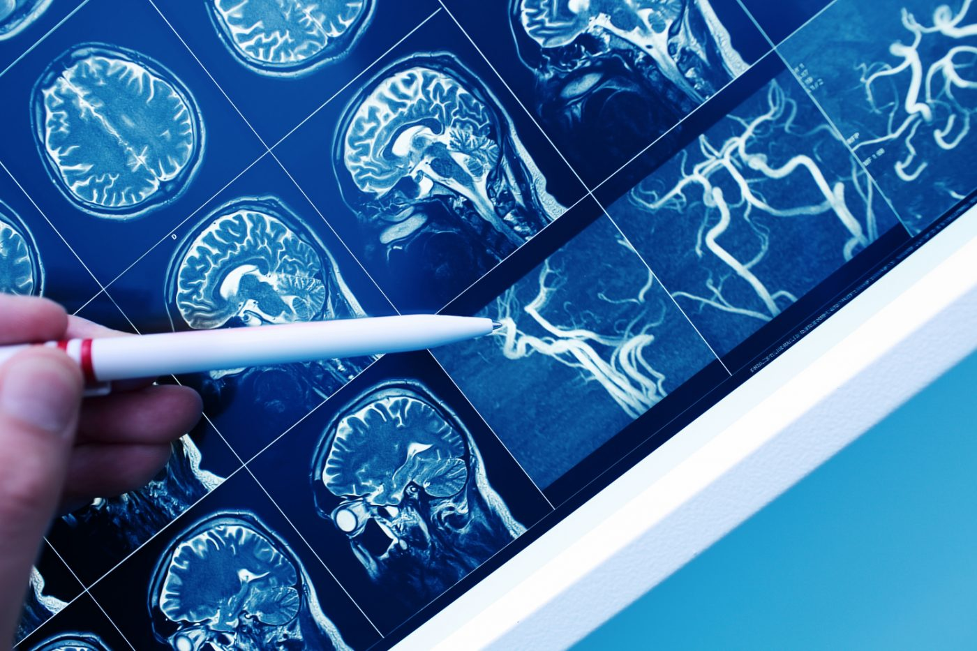 Doctor pointing with pen to the brain blood vessel on the MRI image.