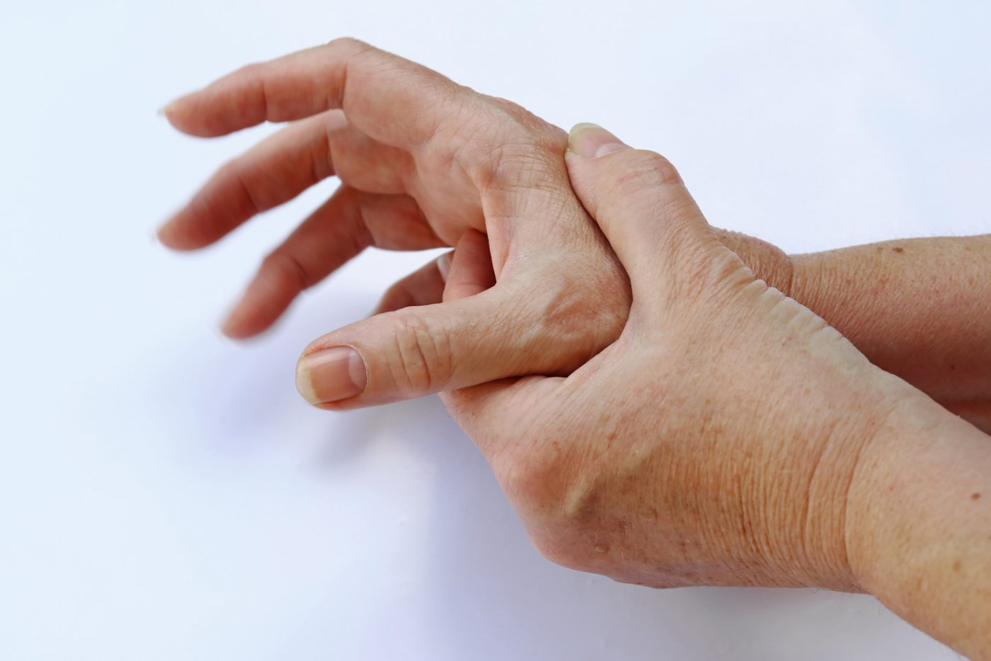 The hands of a woman with Parkinson's disease tremble very strongly